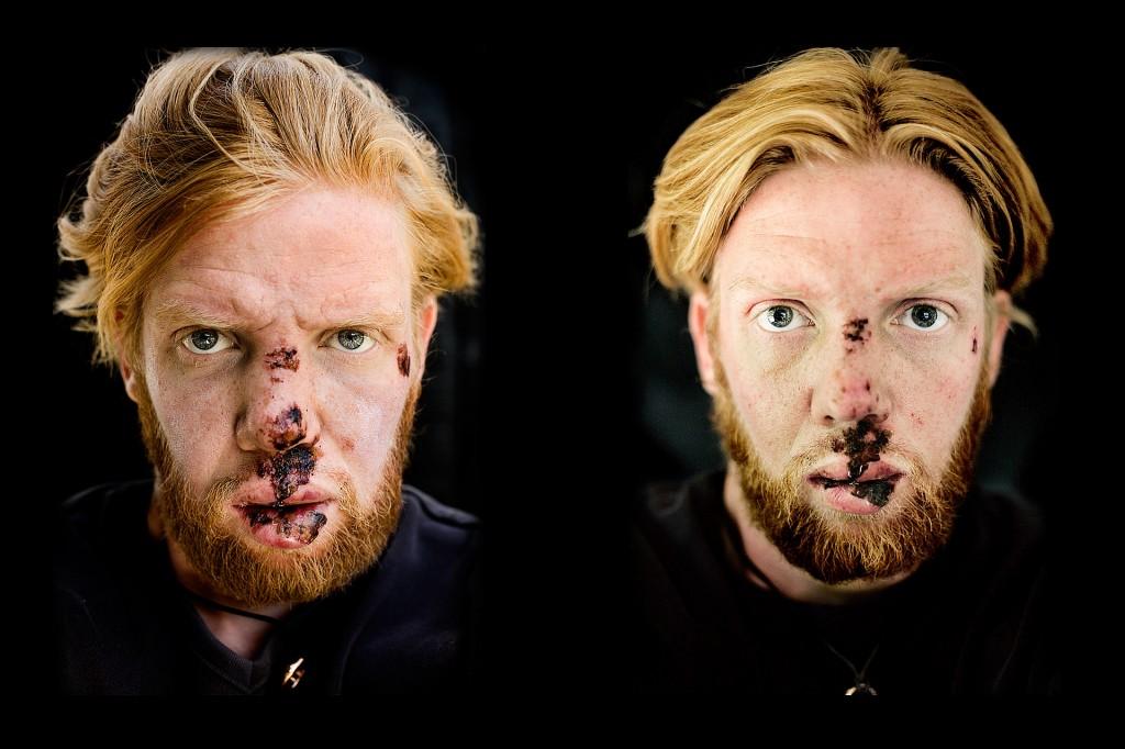 I 2008 styrtede jeg på min cykel. Efter et par smertefulde dage i sengen greb jeg mit kamera og tog en række selvportrætter for at dokumentere min ansigts venden tilbage til normalt.